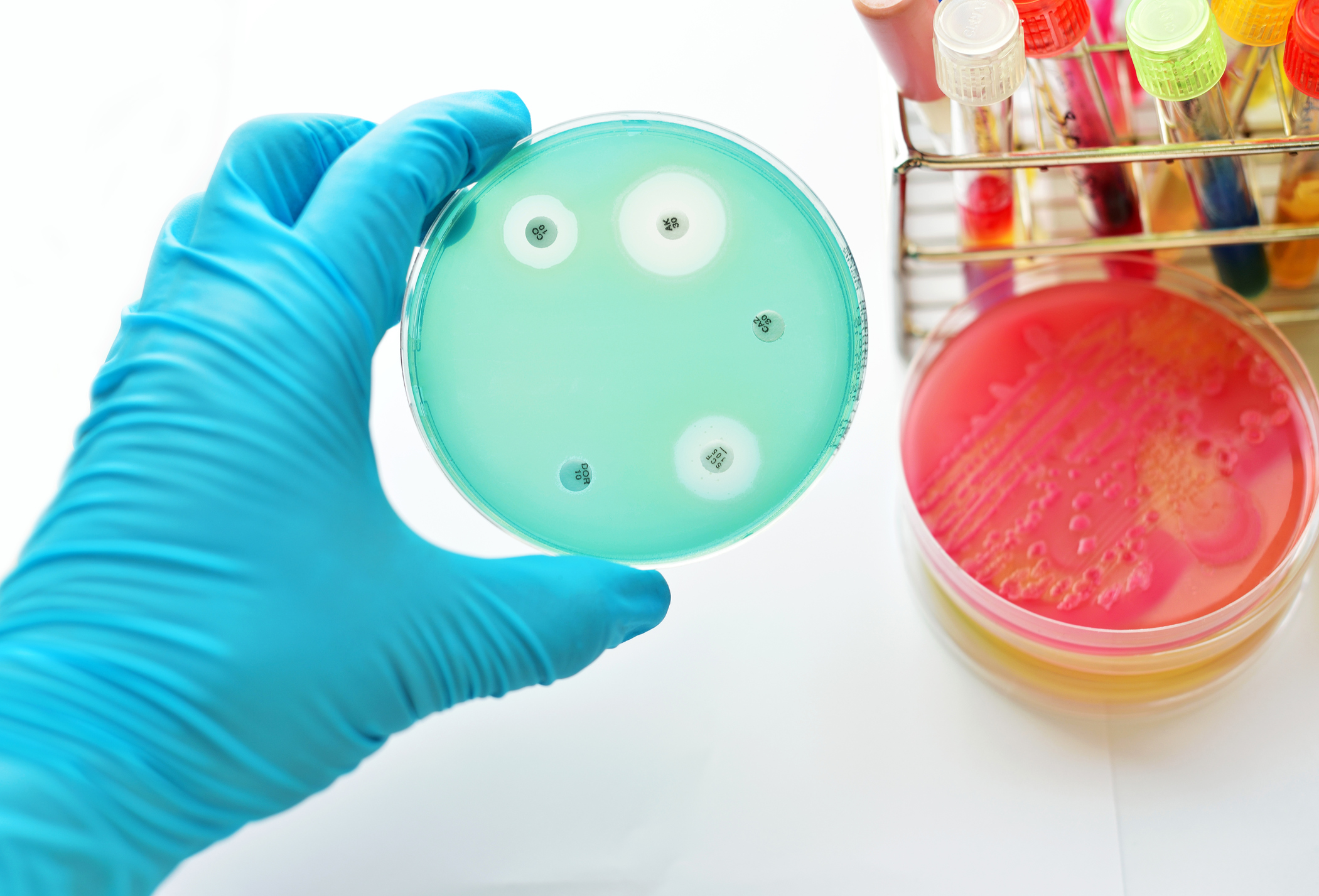 Vad innebär antibiotikaresistens?